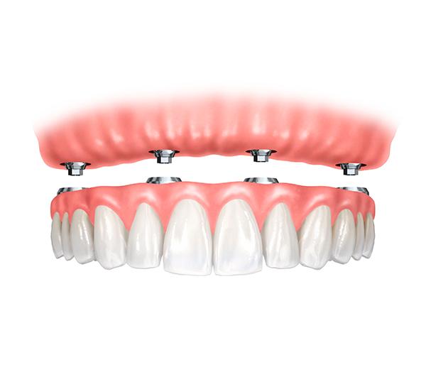Dental Zagreb | Dental prosthetics